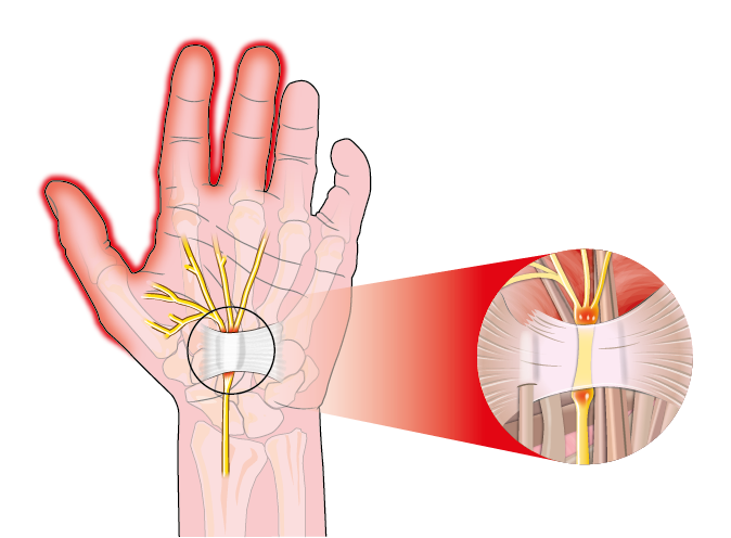 Repetitive Stress Injury, The SomaVeda® Thai Yoga Approach to Carpal Tunnel Syndrome