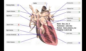 AO Scan Heart Scan